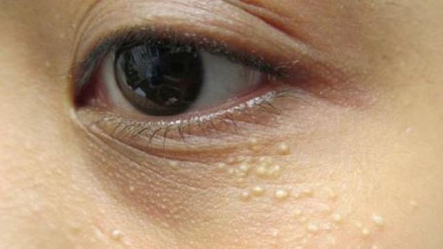 Mụn thịt hay còn gọi là u tuyến mồ hôi là những nốt mụn cứng không có nhân nằm quanh mắt của bạn. Điều này sẽ khiến bạn lo lắng nhiều hơn việc xuất hiện của quần thâm mắt bởi vì quá trình điều trị và thời gian điều trị sẽ khó khăn và lâu hơn. Chọn phương pháp trị mụn thịt an toàn sẽ giúp bạn an tâm đánh bay những nốt mụn không đáng yêu này. Lúc đầu, mụn thịt có màu trắng, sau to dần lên và dày cộm. Mụn thịt quanh mắt tuy không gây đau nhức, viêm và không ảnh hưởng đến sức khỏe của mắt nhưng lại khiến làn da của phụ nữ sần sùi và trông già hơn. Nguyên nhân gây ra triệu chứng này là sự rối loạn chuyển hóa dưới da. Hệ thống collagen là mạng lưới chất keo dưới lớp biểu bì có chức năng tạo nên hình thái của da. Khi da mất nước, lỗ chân lông tắc nghẽn, khiến các chất cặn bã tích tụ tạo nên những nốt mụn.