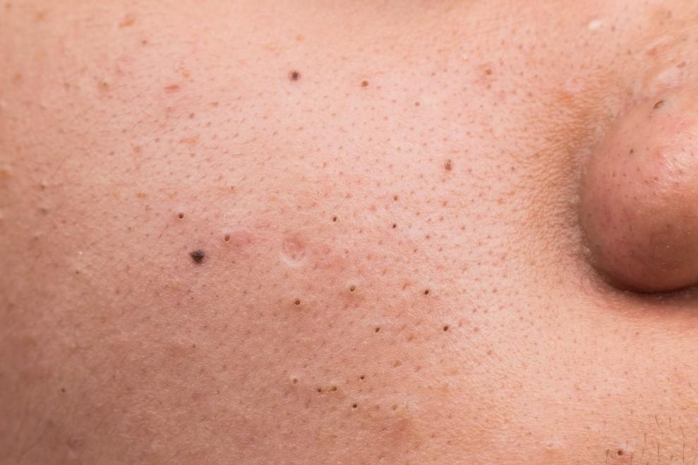 Mụn đầu đen là loại mụn nằm trên bề mặt da được hình thành do lỗ chân lông to hơn bình thường. Vị trí này chứa nhiều dầu nhờn, tế bào chết, bụi bẩn mà không được làm sạch. Sau khi tiếp xúc với không khí bên ngoài quá lâu lớp bề mặt của hỗn hợp không được làm sạch này bị oxy hóa đi. Và biến thành màu đen nên được gọi là mụn đầu đen. Loại mụn này không tạo nên cảm giác đau nhức, sưng đỏ khó chịu. Nhưng lại khiến da mặt trong vô cùng mất thẩm mỹ và không được tươi tắn. Các khu vực tập trung của loại mụn này là khu vực 2 bên má, 2 cánh mũi rất nhiều. Đặc biệt mụn này thường tái đi tái lại nếu không được chăm sóc kỹ lưỡng.