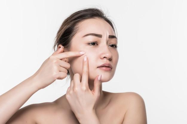 Một trong những lợi ích mà tẩy tế bào chết đem lại cho làn da chính là ngăn ngừa mụn hình thành. Vì sao? Cơ thể có cơ chế loại bỏ tế bào chết tự nhiên, thế nhưng khói bụi, vi khuẩn từ tác động bên ngoài đã ngăn cản quá trình này. Tẩy da chết sẽ thực hiện vai trò loại bỏ bụi bẩn, dầu thừa, lớp sừng thừa chết ra khỏi bề mặt da. Điều này giúp các lỗ chân lông được thông thoáng, không bị bít tắc ngừa được các loại mụn như đầu đen, mụn ẩn. Ngoài ra, khi các lớp da chết dư thừa được loại bỏ, các chức năng của da sẽ hoạt động trơn tru hơn.